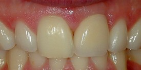 Picture of teeth after procedures