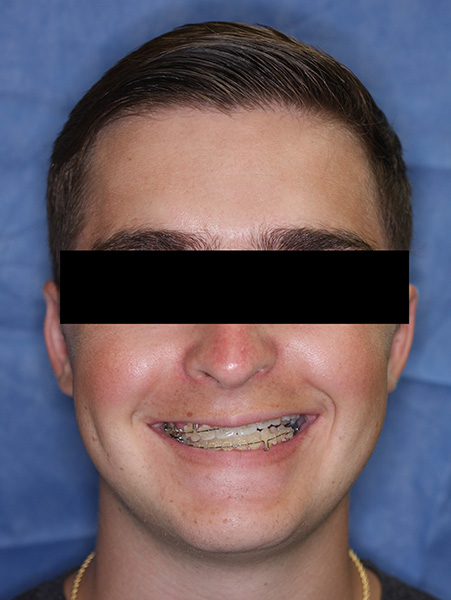 Picture of a man  before jaw surgery
