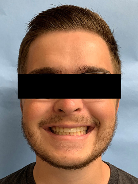 Picture of a man  after jaw surgery