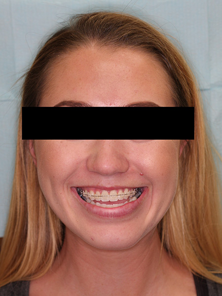 Picture of a woman  before jaw surgery