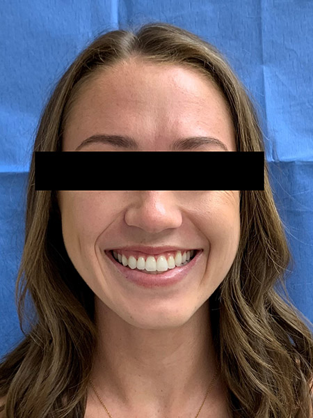 Picture of a woman  after jaw surgery