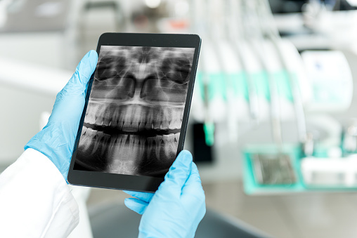 Digital x-ray from Placentia Oral Surgery on a tablet screen in Placentia, CA