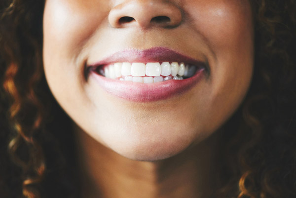 Close up of a beautiful woman smiling at Placentia Oral Surgery in Placentia, CA