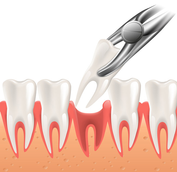 Illustration of a tooth being extracted at Placentia Oral Surgery in Placentia, CA